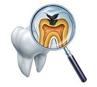 √~ كاريسولف, علاج تسوّس الأسنان