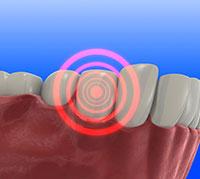 وجع الاسنان %D8%A7%D9%84%D9%85-%D8%A7%D9%84%D8%A7%D8%B3%D9%86%D8%A7%D9%86
