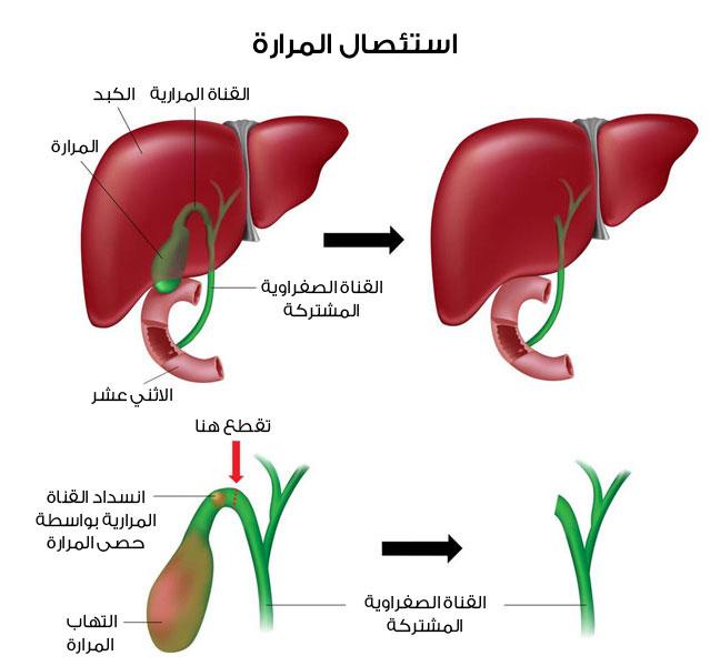 توضيح جراحات استئصال المرارة Cholecystectomy surgery
