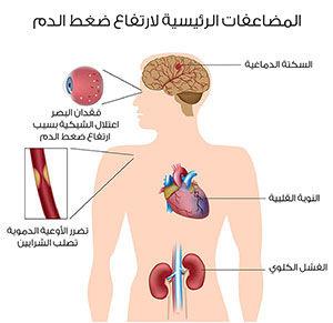 توضيح لمضاعفات ارتفاع ضغط الدم
